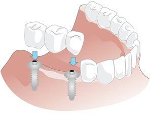 implantatgetragene Brücke